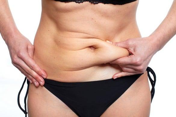 chirurgie esthétique ventre